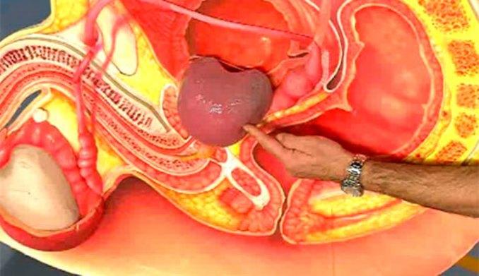 Воспаление простаты симптомы температура 4