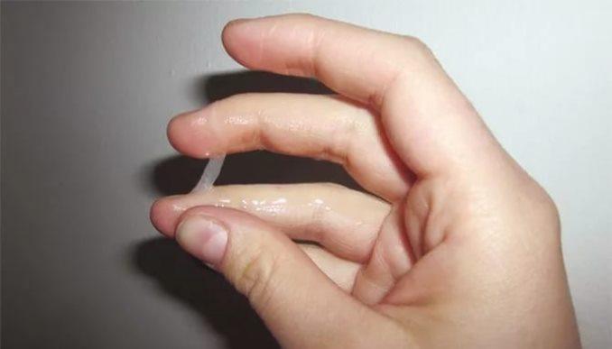 Язвы на половом члене признаки заболевания
