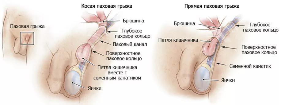 Боли в паховой области у мужчин