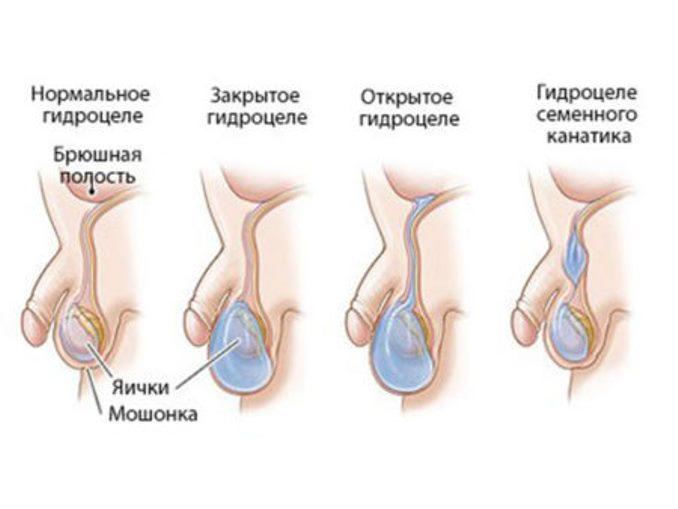 Ноющая боль в яичках у мужчин