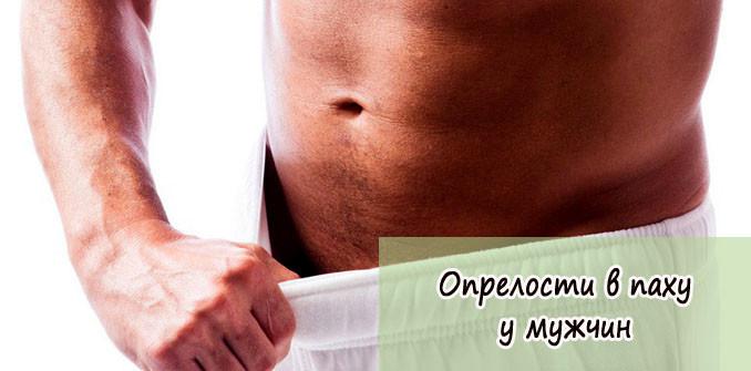 Лечение народными средствами от высокого холестерина