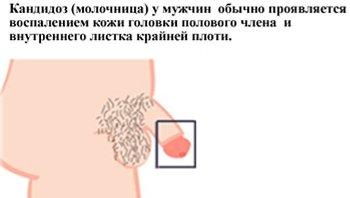 Жжение и сухость в интимной зоне у женщин лечение и профилактика