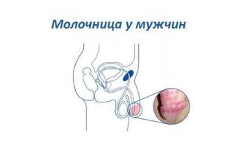 ВИЧ-инфекция - симптомы болезни, профилактика и лечение ...