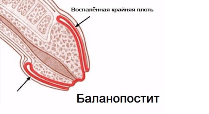 Щиплет головку полового члена