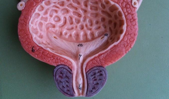 При раке простаты через задний проход