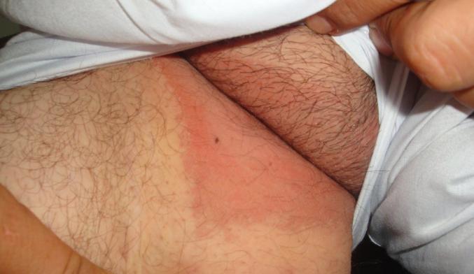 Почему возникает жжение в паху у мужчины: причины, другие симптомы, терапия