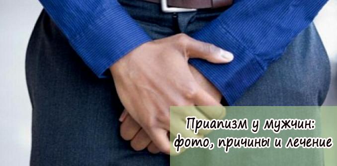 Приапизм у мужчин: фото