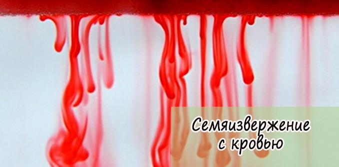 Семяизвержение с кровью у мужчин