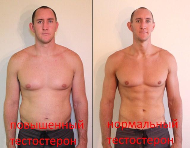 последствия повышенного тестостерона.