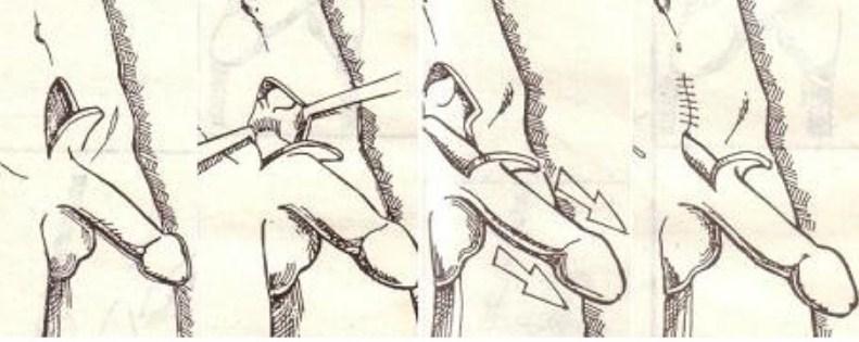 Хирургический способ увеличения полового органа